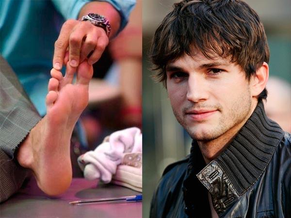 Mensch Mit 6 Finger